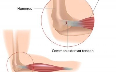 11 Signs You Have Tennis Elbow and What to Do About It