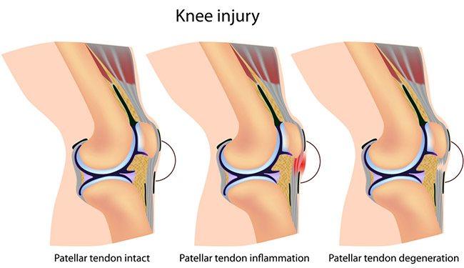 Knee injury graphic showing patella tendonipathy