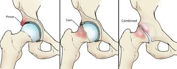 Hip pain picture